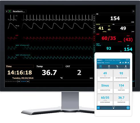 Monitoramento virtual do paciente