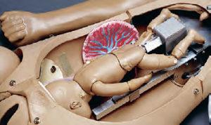 Mecanismo e Bebê