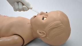 Intubação Nasal