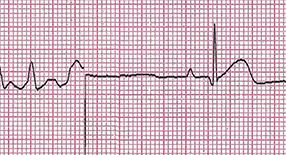 Ver ECG Dinâmico