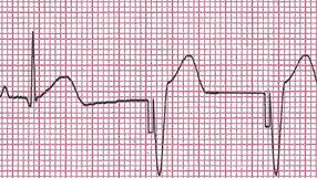 Traçado de ECG