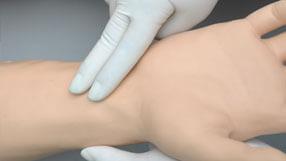 Pulso bilateral da carótida, radial, braquial, femoral, poplítea e pedal. As intensidades de pulso variam com a pressão arterial e os pulsos são sincronizados com o ECG